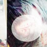 সদর দক্ষিণে শালিসে সাক্ষী দেয়ার জের ধরে সন্ত্রাসী হামলা,আহত ৬ জন