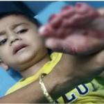 চৌদ্দগ্রামে কোদালের কোপে আড়াই বছরের শিশুর চারটি আঙুল নেই