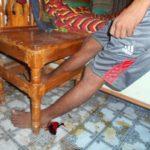 চান্দিনায় রাসেল এর আত্মহত্যা নিয়ে ধুম্রজাল