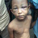 মনোহরগঞ্জে মাদরাসায় ৫ বছরের শিশুকে নির্যাতন করলো শিক্ষক