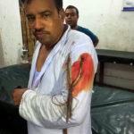 নবীনগরে সন্ত্রাসী হামলায় চেয়ারম্যানসহ ৪ জন আহত