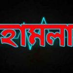 কুমিল্লার মেঘনায় ইউপি চেয়ারম্যান ফারুক আব্বাসীর উপর সন্ত্রাসী হামলা