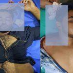 কুমিল্লার তিতাসে দুইজনকে কুপিয়ে আহত, আশঙ্কাজনক অবস্থায় ঢাকায় প্রেরণ