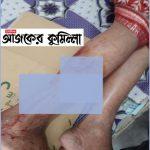 কুমিল্লার তিতাসে শিয়ালের কামড়ে শিশুসহ আহত ৬ জন